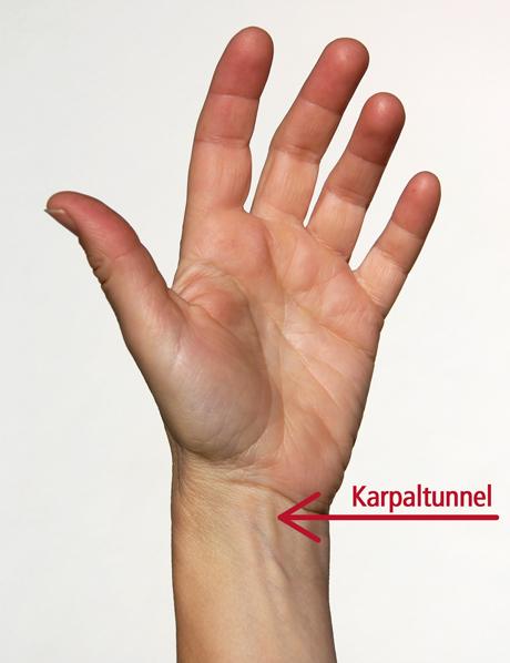 Lage des Karpaltunnels am Handgelenk